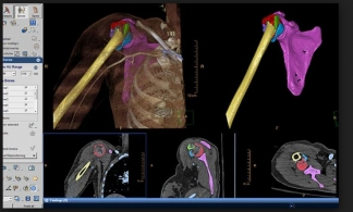 Philips IntelliSpace IX Workstation for CT TRAUMA
