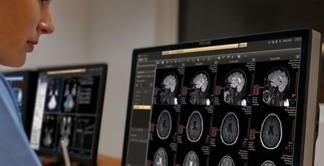 Philips IntelliSpace Portal Add On CCU
